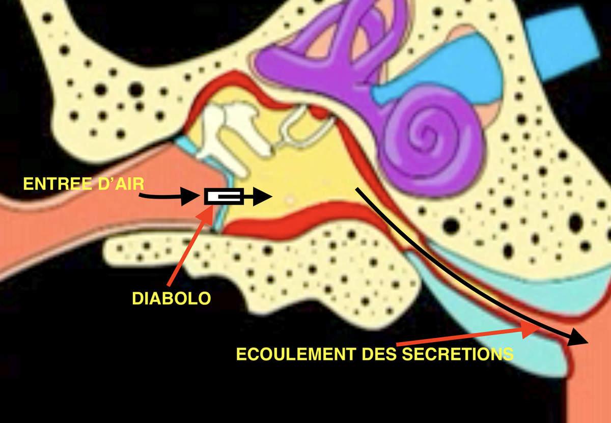 Aérateurs Transtympaniques Ou Diabolos - Le Blog De L'orl destiné Oreille Bouchée Piscine